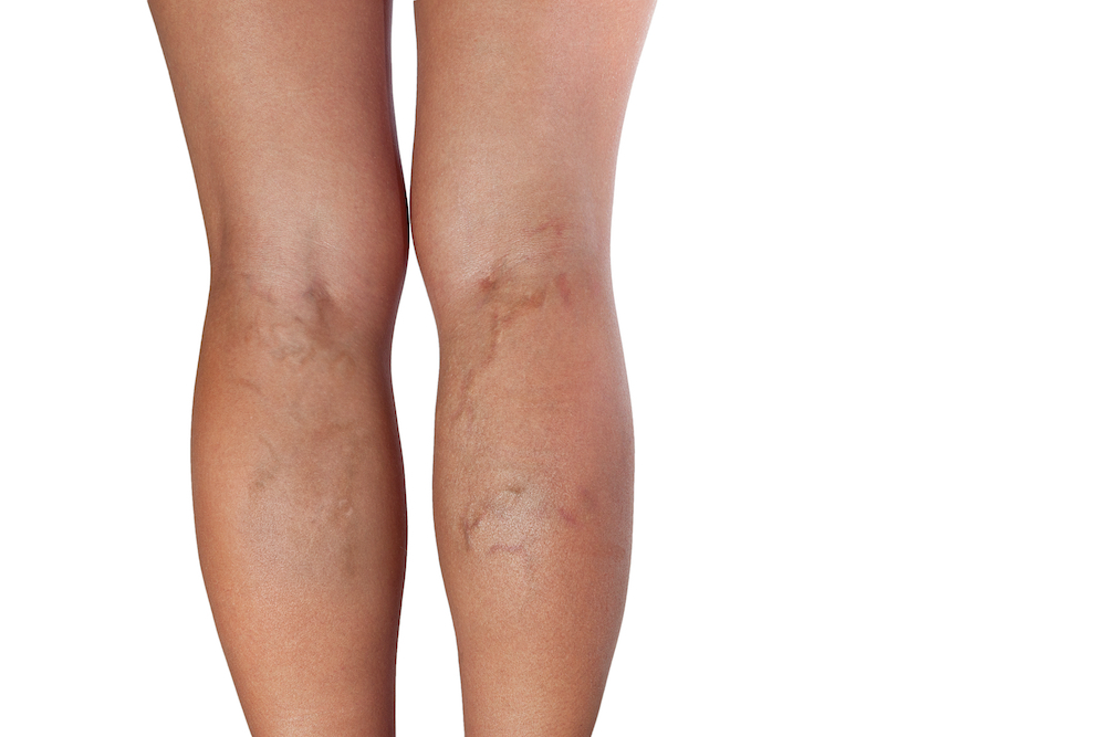 Varicose veins increase with age
